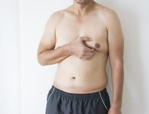 Ginecomastia – Cirurgia de mama masculina
